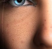грубая текстура кожи в жёстком свете